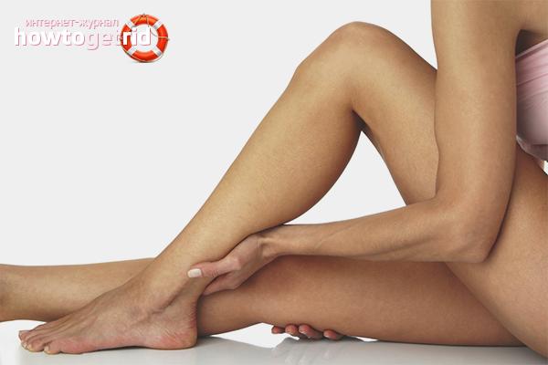 Как убрать синяки на ногах