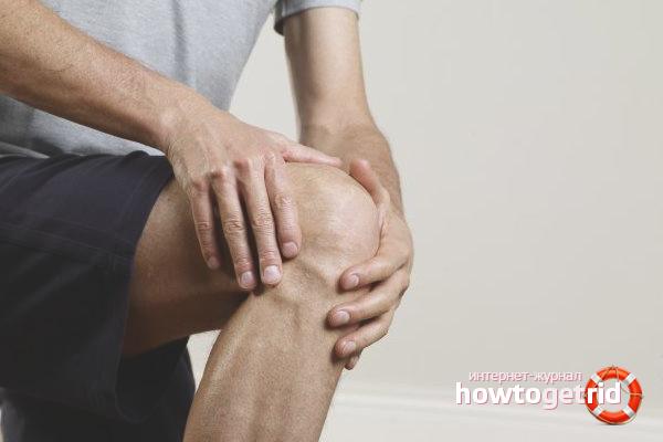 Лечение бурсита коленного сустава