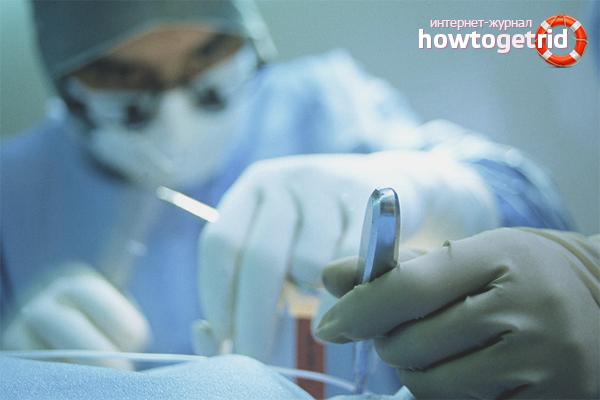 Лечение кисты яичника хирургическим методом