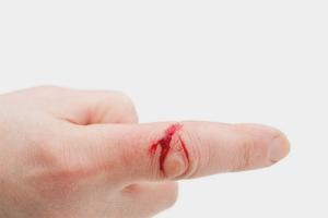 Как остановить кровь при порезе