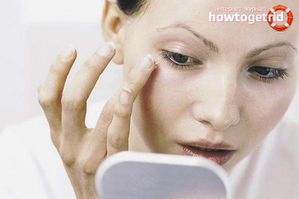Эффективные способы устранения отёков под глазами