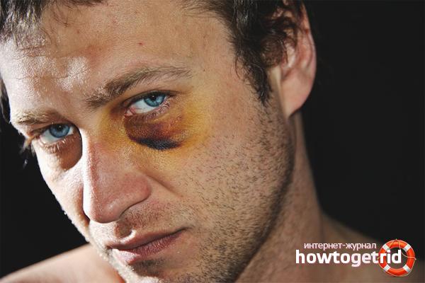 Как быстро вылечить синяк под глазом