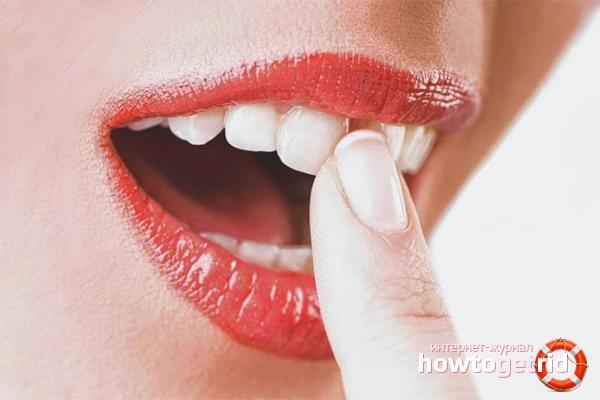 Как укрепить шатающийся зуб