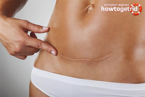Как избавиться от шрама после операции