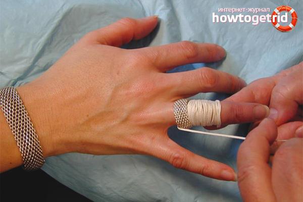 Как снять кольцо с опухшего пальца с помощью нитки