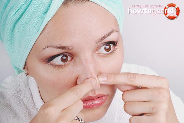 Как избавиться от угрей на носу