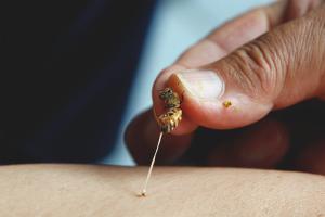 Как снять отек после укуса осы