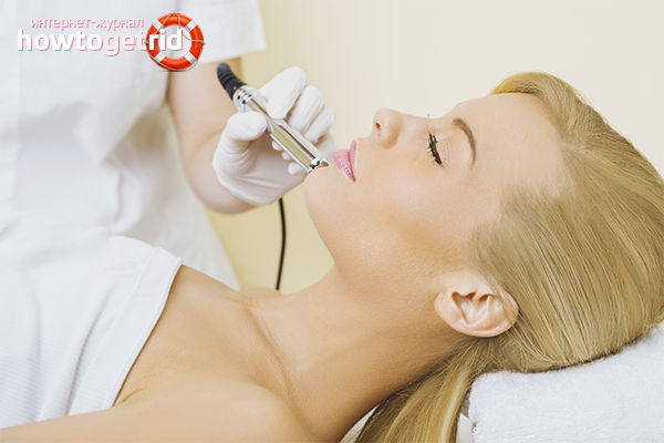 Как убрать капилляры на лице в кабинете у косметолога