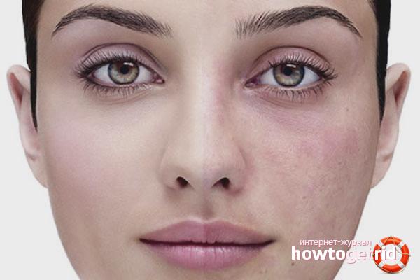 Как убрать капилляры на лице