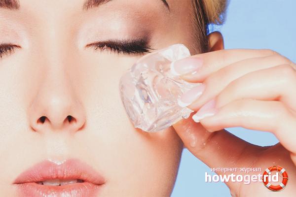 Народные средства против капилляров на лице