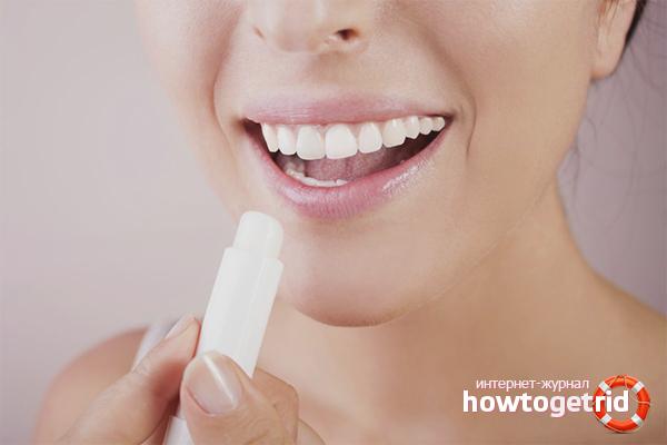 Домашние средства против обветренных губ
