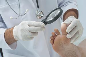 Как лечить грибок стопы