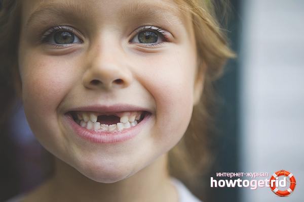 Сроки выпадения зубов