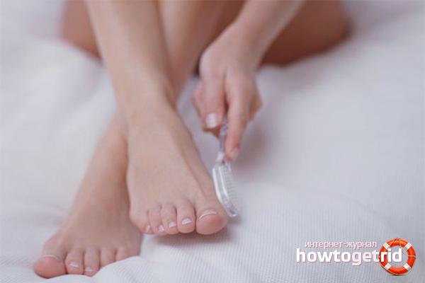 Как избавиться от мозолей на пальцах ног