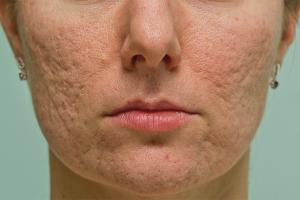 Как убрать шрамы от прыщей на лице