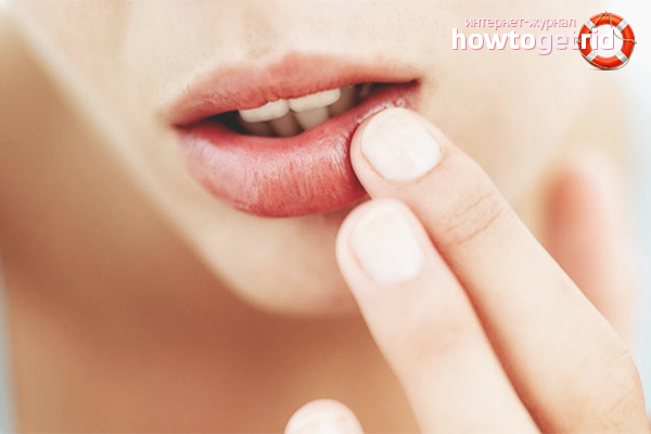 Народные средства против сухости губ