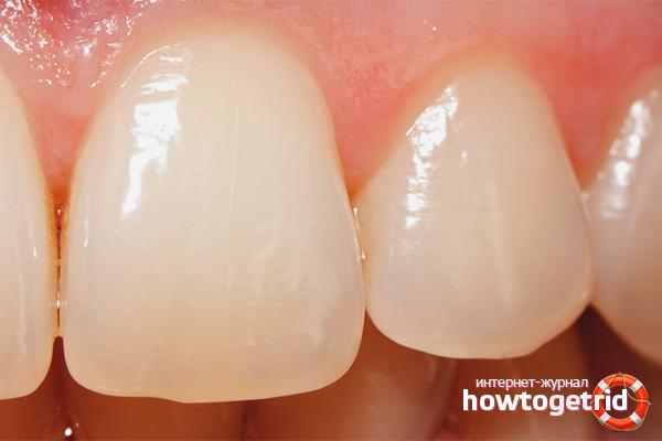 Как восстановить зубную эмаль