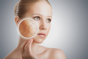 Как убрать шелушение на лице