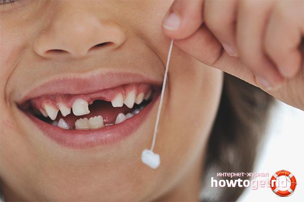 Как вырвать молочный зуб у ребенка