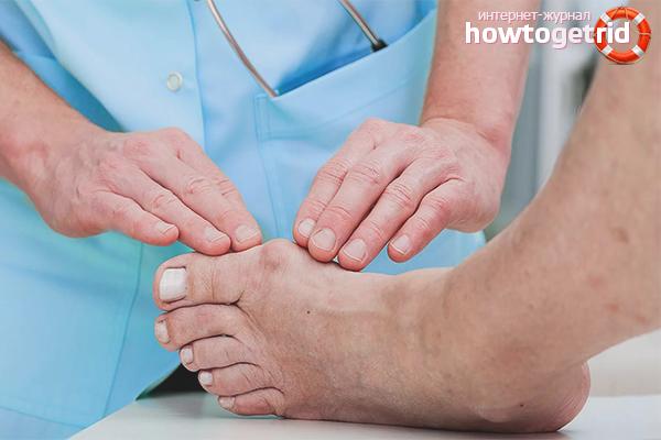 Профессиональное лечение шишки на большом пальце ноги