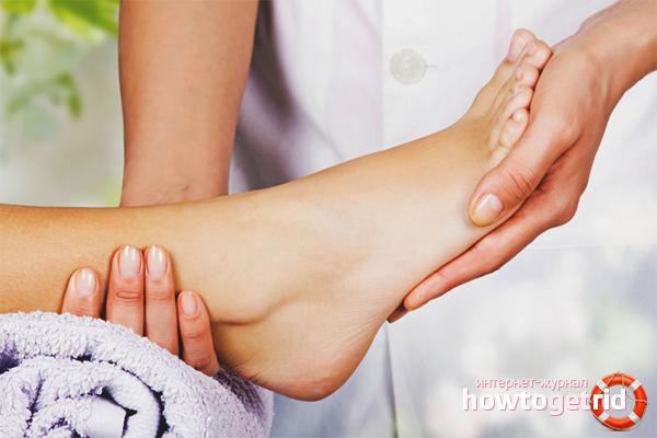 Как лечить артроз стопы