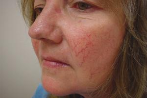 Как лечить купероз на лице