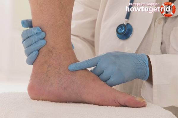 Как лечить тромбофлебит нижних конечностей