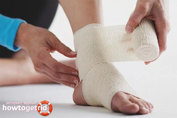 Как лечить растяжение связок на ноге