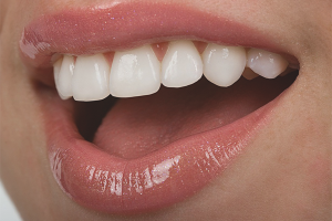 Как укрепить зубы, если они разрушаются