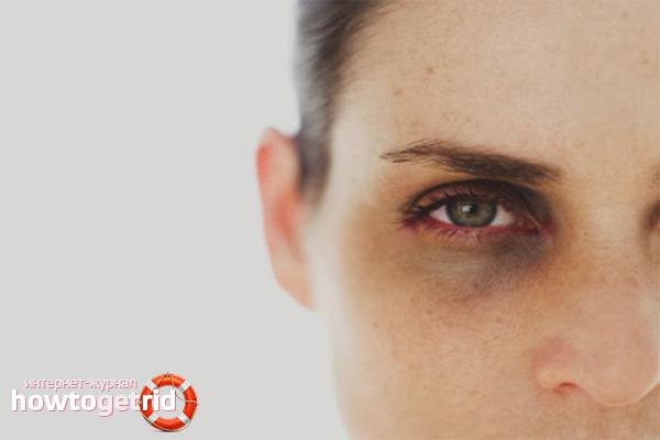 Почему появляются темные круги под глазами