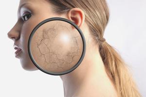 Что делать, если шелушится кожа на лице?
