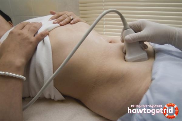 Что делать при внематочной беременности