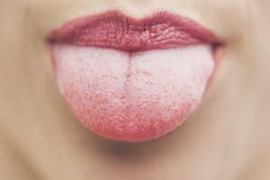 Болит кончик языка