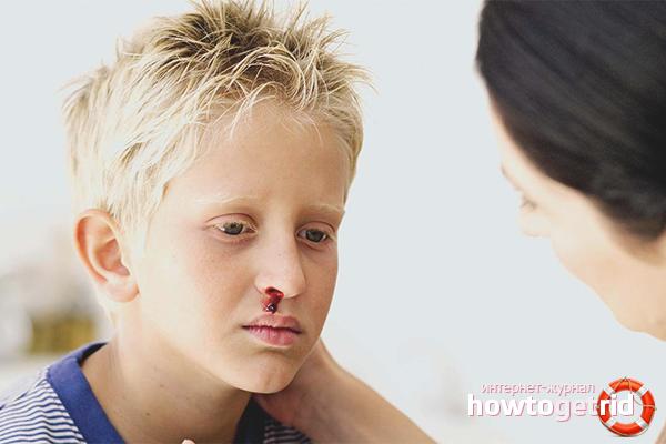 Носовое кровотечение у детей