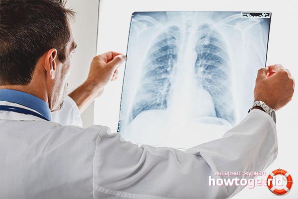 Форма и диагностика туберкулеза
