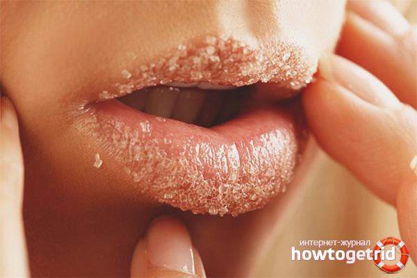 Обветрились губы