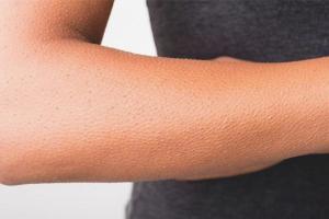 Как избавиться от гусиной кожи на руках