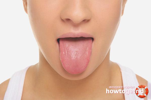 Как лечить язвы на языке