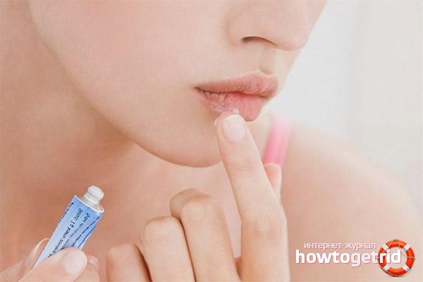 Лечение сухости губ