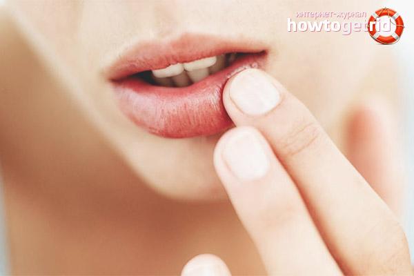 Внутренние причины сухости губ