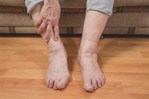 Отеки ног у пожилых людей