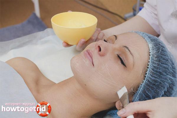 Специальный уход за кожей после пилинга