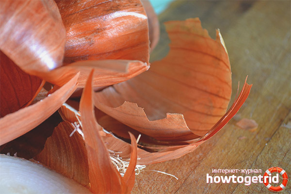 Внешнее применение луковой шелухи