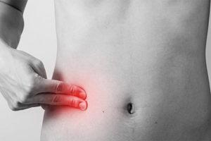Какие симптомы указывают на то, что у вас аппендицит