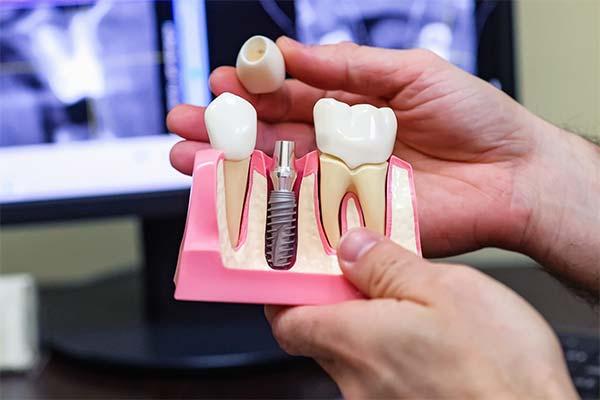 Протезирование и имплантация зубов