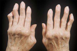 Какие симптомы указывают на то, что у вас артрит