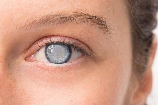 Опасные и вредные продукты при катаракте