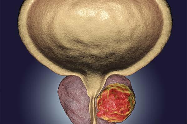 Какие симптомы указывают на то, что у вас аденома простаты