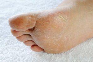 Какие симптомы указывают на то, что у вас грибок стопы