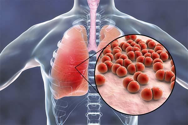 Какие симптомы указывают на то, что у вас пневмония